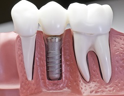 Dental Implants Bowie, MD
